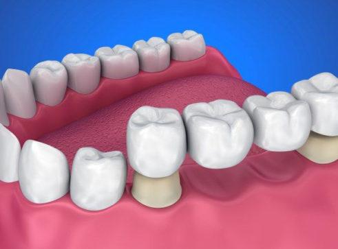 Crowns & Bridges - Treatment - Smile Perfections Dental