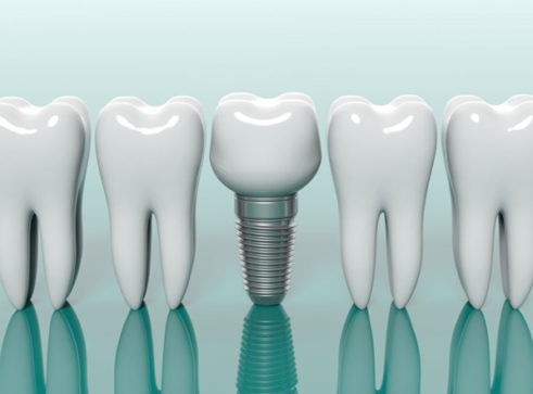 Teeth in a Day Solutions - Treatment - Smile Perfections Dental