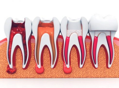 Root Canal Therapy - Treatment - Smile Perfections Dental